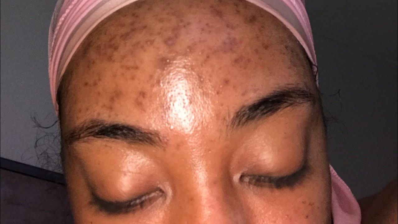 Fungal Acne Nizoral Review Youtube
