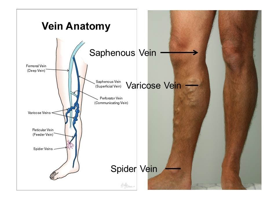 superficial varicose veins