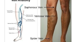 You Lose Weight and Your Veins Look Worse - Why?