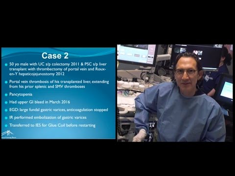 Harbor UCLA 2016  EUS guided coil glue for gastric varices with slide presentation