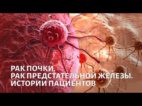Рак почки - симптомы, лечение, профилактика, причины