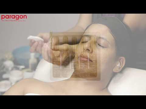 Paragon Age Defying Body lifting facial treatment