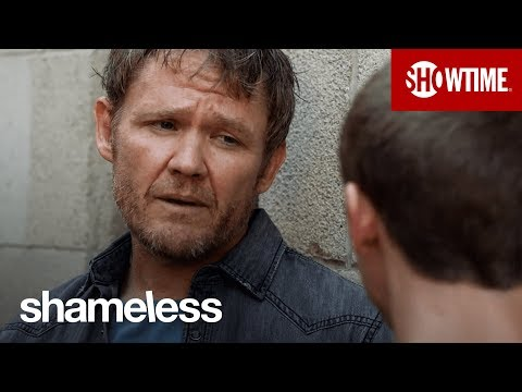 'What Kind of Doctor?' Ep. 13 Official Clip | Shameless | Season 9