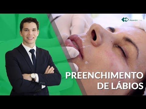 Preenchimento de Lábios com Ácido Hialurônico | Dicas básicas | Dr. Alexandre Lima