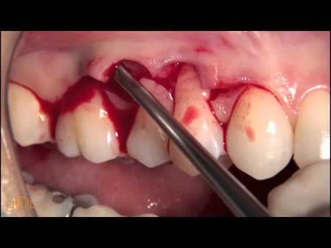 cv-50-treatment-of-single-moderate-gingival-recessions...-preview