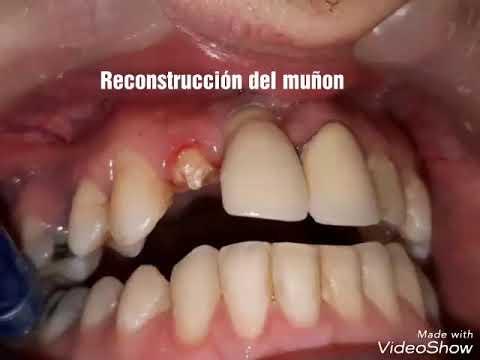 Download Reconstrucción Perno Muñon