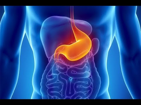 What is Dyspepsia? What causes Dyspepsia? Symptoms and Treatment of