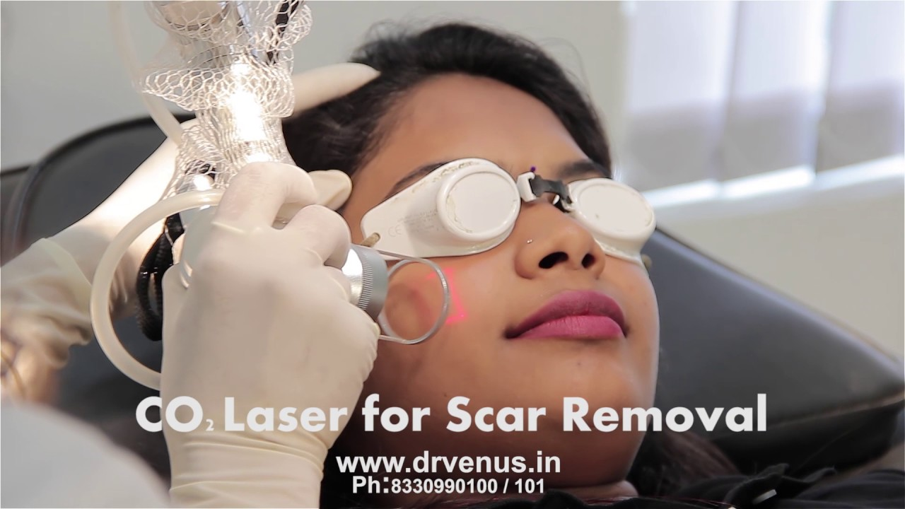 Famous Skin and Hair Clinic in Hyderabad [One Stop Solution]