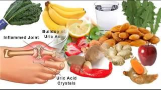 യൂറിക് ആസിഡ് എളുപ്പത്തിൽ നിയന്ത്രിക്കാം   Uric Acid Treatment   Latest Malayalam