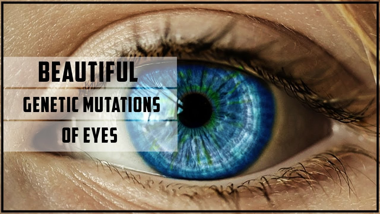 Beautiful Genetic Mutations Of Eyes