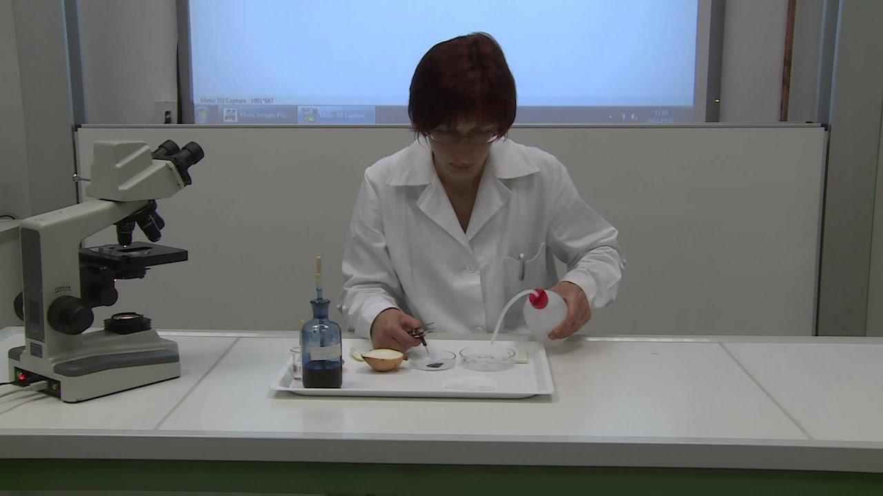 A helminták sejtfalának összetétele