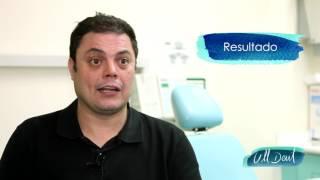 Tratamiento de bruxismo en Badalona. Testimonio de Gabriel, paciente de la Clínica Dental Ull Dent.