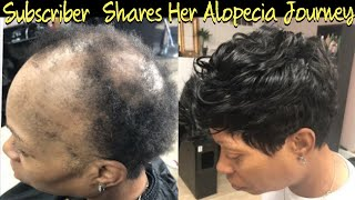 Severe Alopecia Sew In   Subscriber Free Transformation ( Listen to her Alopecia Journey)