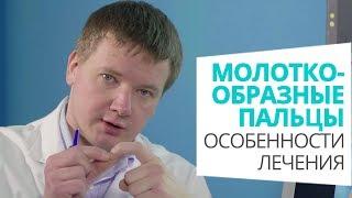 молоткообразные пальцы: особенности лечения доктор Алексей Олейник #footclinic