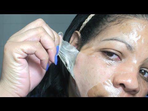 Mascara de Gelatina Caseira para Tirar Cravos. Realmente Funciona Ai Q Dor, Socorro Gente, isso dói