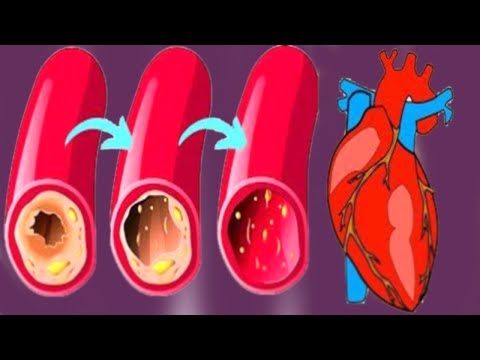 Don't Let Heart Blockages Become Life Threatening  eat THIS To Clean Your Arteries! How to clear you