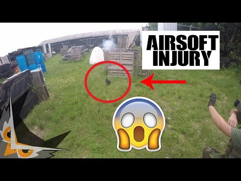 AIRSOFT INJURY | EXPLOSIVE MAGAZINE VS NUTS (GONE WRONG)