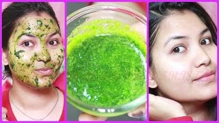 Get bright & clear complexion/remove acne, pimples/Super effective spinach face mask thumbnail