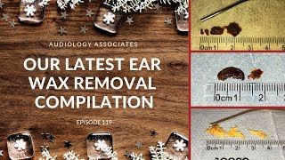 OUR LATEST EAR WAX REMOVAL COMPILATION - EP 119