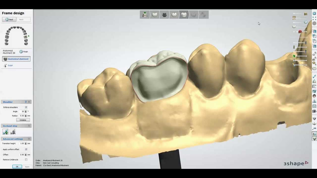 Anatomical Abutment Cut Back Screw Retained Crown Youtube