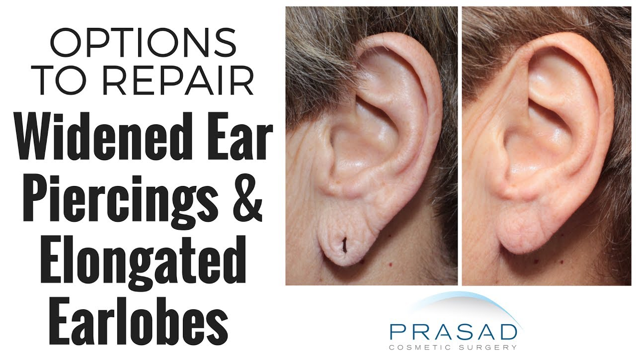 How Widened Ear Hole Piercings Can Be Repaired With Sching Or Minor Surgery