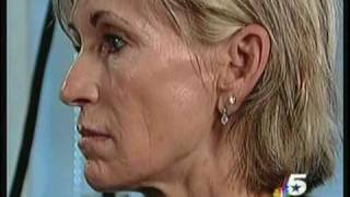 Dr Malouf: Mini Face Lift Thumbnail
