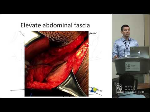 Pelvis Surgical Approaches - Conor Kleweno, MD