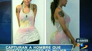 Repeat youtube video A mujer le inyectan cemento en sus gluteos