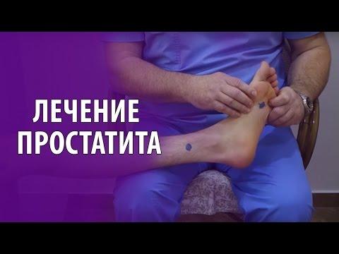 Хронический простатит и аденома простаты | Лечение | Как снять  Симптомы за несколько минут