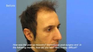 Hair Transplant Professional
