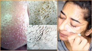 How to Instant Remove Blackheads and Facial Hair At Home || Indian Beauty Guru
