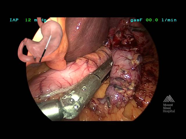 THE MOUNT SINAI SURGICAL FILM ATLAS Laparoscopic Sleeve Gastrectomy