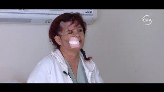 Médicos buscan reconstruir rostro de fiscalizadora atropellada - CHV Noticias