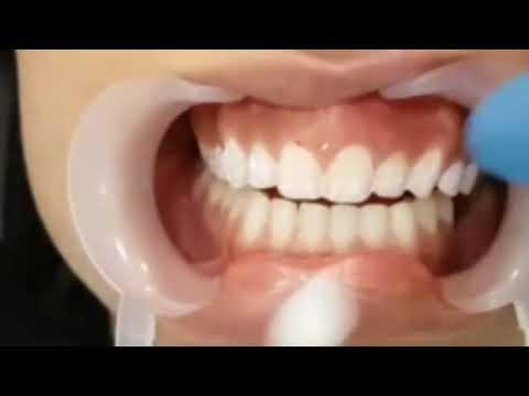 مركز مانشستر الشارقه الطبي للأسنان  الشارقه 0097165547373 00971552011202 Manchester medical center s