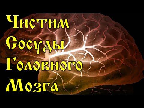 Очищение сосудов головного мозга. Проверенные методики!