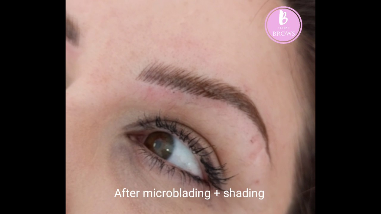 Microblading For Trichotillomania Hair Pulling Disorder Youtube