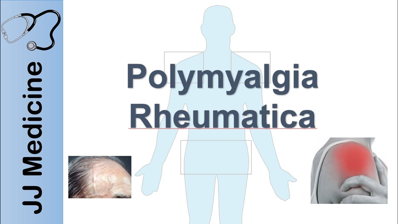 Download Polymyalgia Rheumatica | Signs & Symptoms, Diagnosis and Treatment