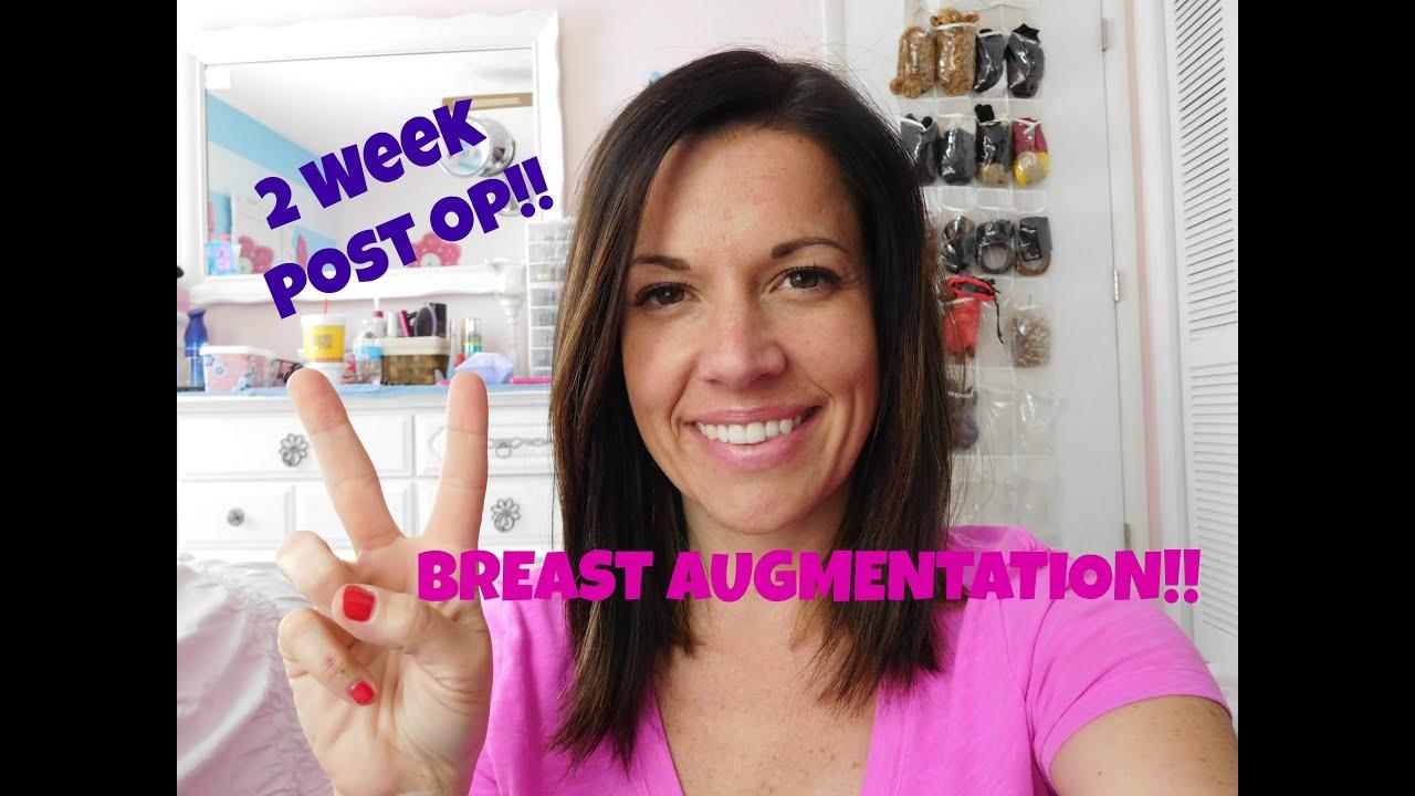 2 Week Post Op Breast Augmentation - Youtube-5457