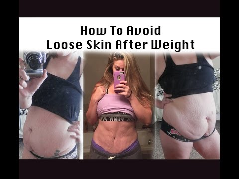How To Avoid Loose Skin with Weight Loss