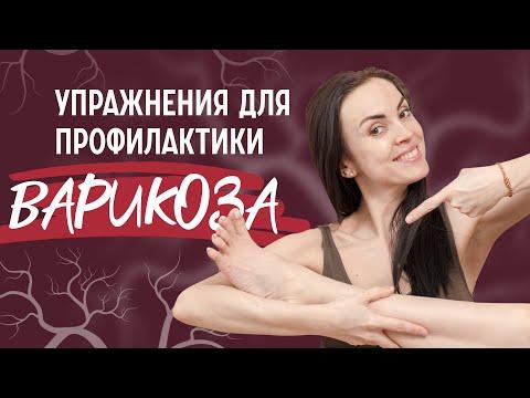 ВАРИКОЗ НОГ   Упражнения и массаж для профилактики и лечения