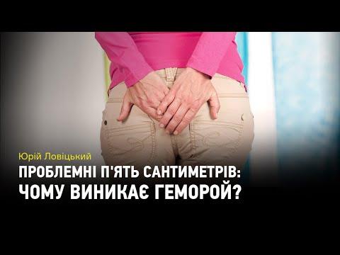 Видео: Проблемні п'ять сантиметрів: чому виникає геморой