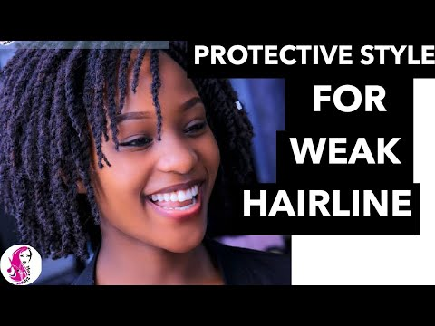 Protect Your Weak Hairline In This Period Of QUARANTINE With SHAN TWIST.