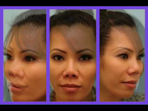 3-Way Morph for Asian Blepharoplasty, Revision Rhinoplasty, Fat Grafting
