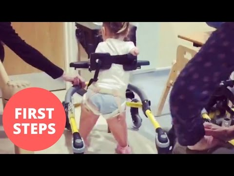 A toddler who lost all her limbs to meningitis takes her first steps