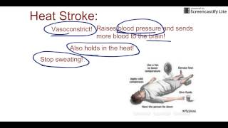 Heat stroke has a high mortality rate and can even be fatal. This video reviews the definition of he.