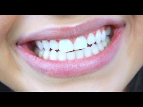 5 Tipps für weiße Zähne, Mundgeruch & Co.