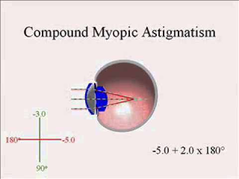 myopia astigmatism meaning