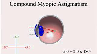 Lecture 12, Astigmatism Types