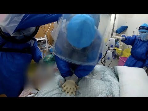 Doctors rescue critically-ill COVID-19 patient in need of intubation