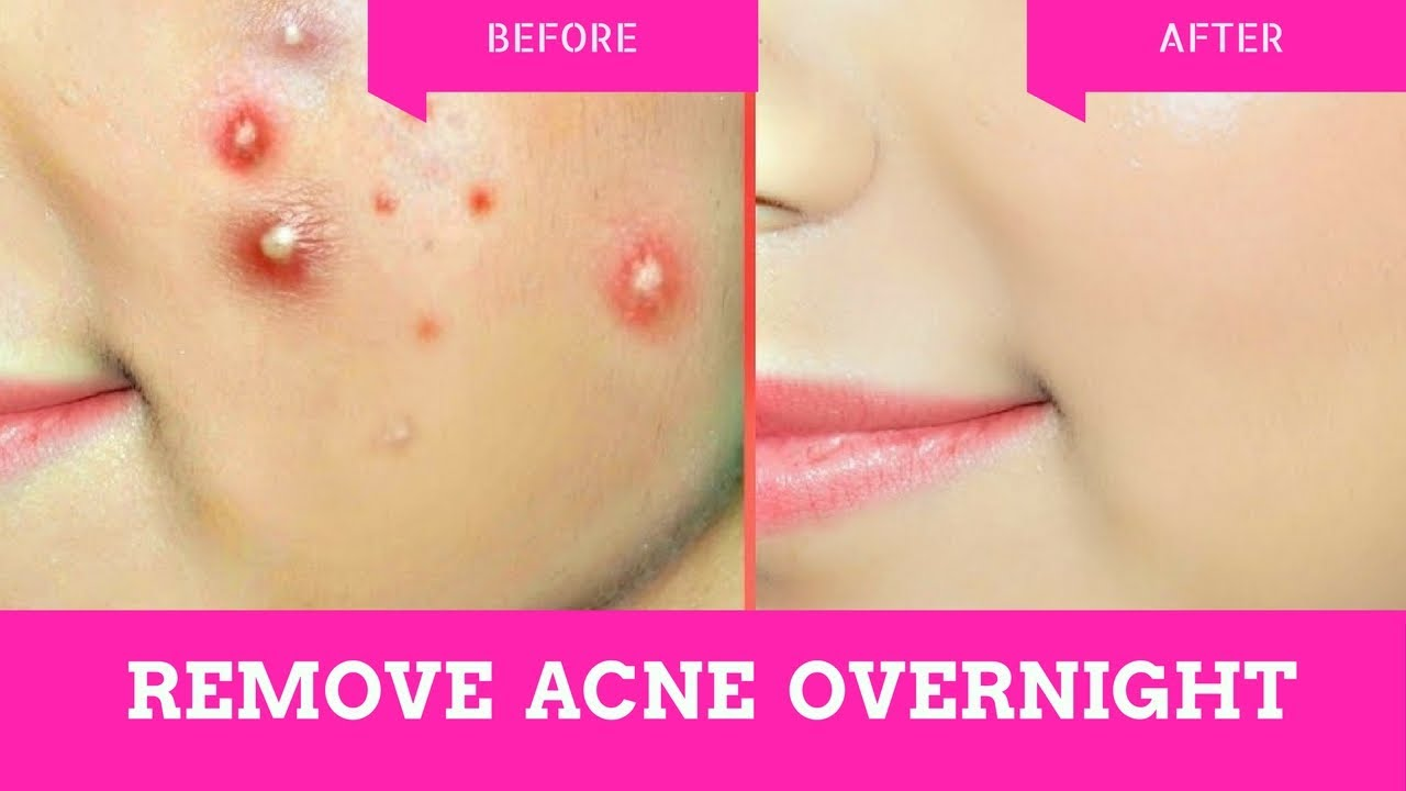 10 Acne Minutes How In Rid To Get Of